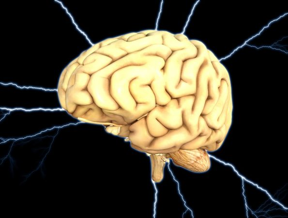Cervello E1535639086309